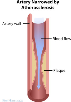 Illustration of an artery affected by atherosclerosis